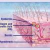 hyarulonic acid