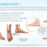ภาวะเท้าแบน สาเหตุ และการรักษา