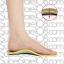 แผ่นรองแก้เท้าแบน รองเท้าเท้าแบน เพื่อสุขภาพ (size 36-41) thumbnail 1